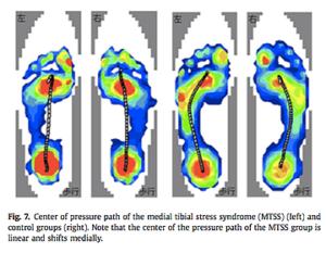 シンスプリントと足底の圧力分布