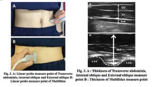 ドローインと体幹部の筋肉のエコー検査