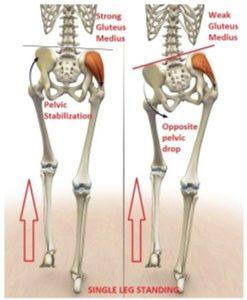 中臀筋と脚長差
