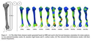 有限要素法による脛骨への負荷の算定