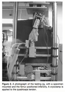 献体による大腿四頭筋の筋力と前十字靭帯の負荷の実験