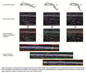 筋膜の滑走性