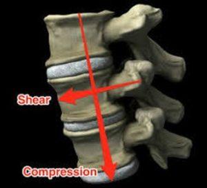 脊柱の前方への剪断力