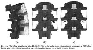 脊柱分離症を両側に発症している場合の有限要素法