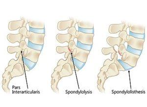 脊柱分離症及び脊柱すべり症