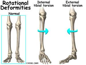 脛骨の内旋と外旋