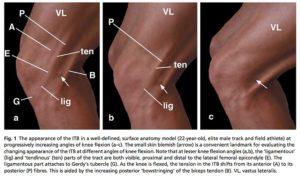 腸脛靭帯の動きと膝の曲げ伸ばし