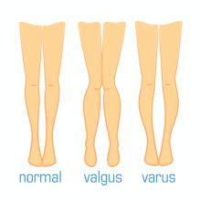 膝の内反及び外反