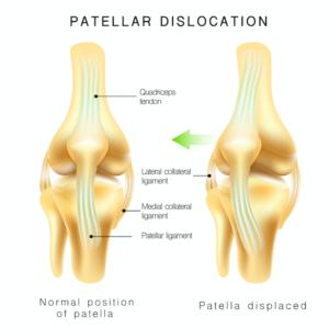 膝蓋骨の脱臼