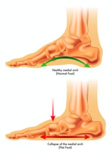 足のアーチの崩れ