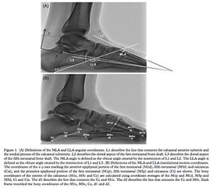 足のアーチを計測