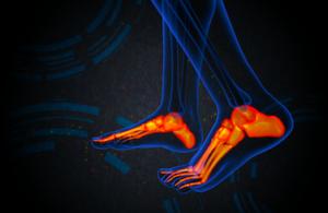 足の骨へのストレス