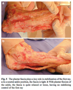 足底筋膜の献体