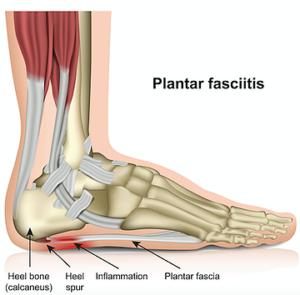 足底筋膜炎の解剖図