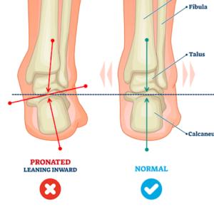 足首のプロネーション