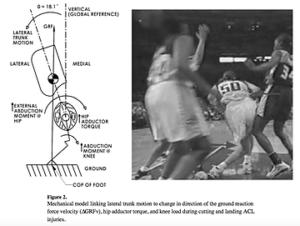 骨盤の位置の変化と膝への負担