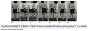 骨盤の動きと腸脛靭帯の負荷の測定