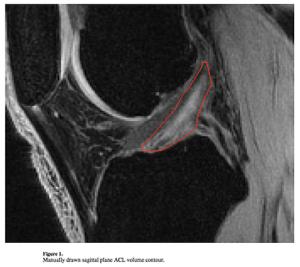MRIによる前十字靭帯の測定
