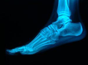 地面からの力と足部の疲労骨折