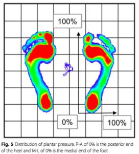 疲労骨折と足底への圧力