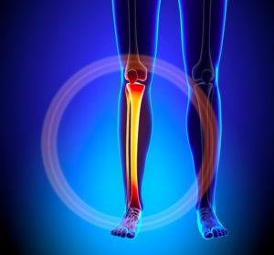 脛骨の疲労骨折