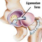 大腿骨頭靭帯(Ligamentum teres)