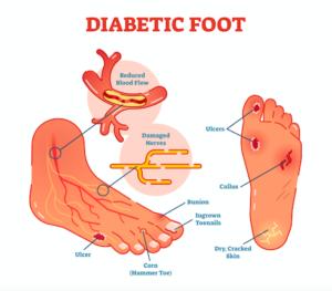 糖尿病の足