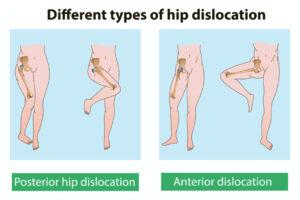 股関節の脱臼