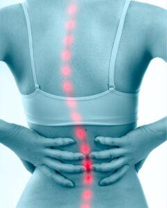 脊椎側彎症