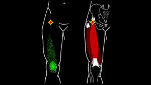 トリガーポイント大腿四頭筋