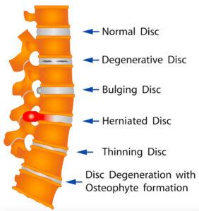 椎間板の変形