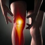 膝の骨の痛み